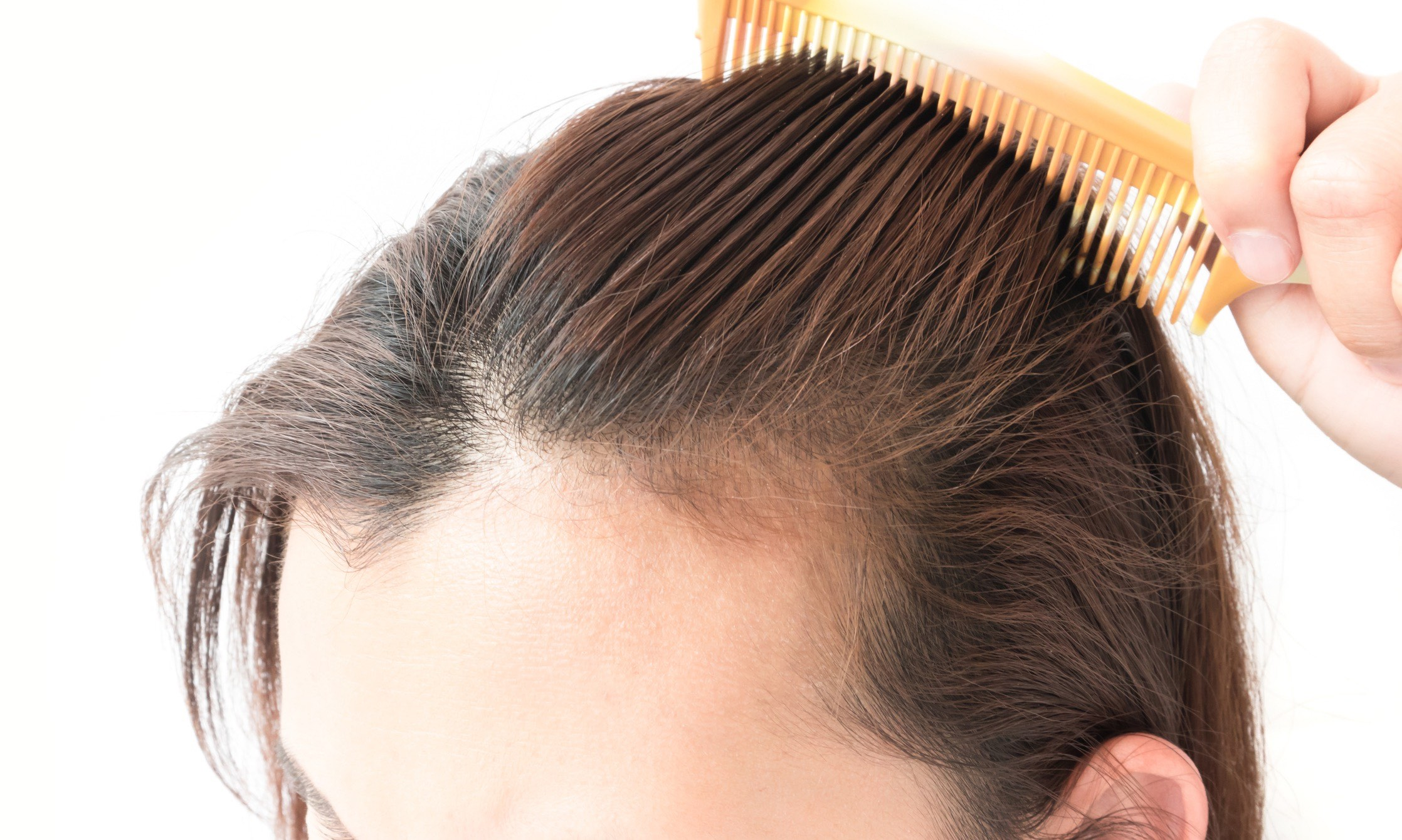 3 Things That Will Help You To Find The Best Hair Transplant Clinic