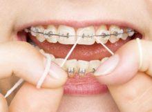 Budapest Venue For Best Dental Treatment