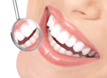 Certain Qualities That You Should Always Look In a Dentist