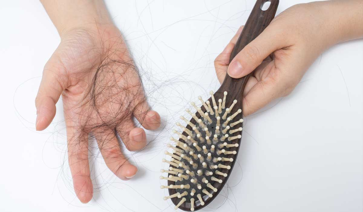 Habits & Tips to Prevent Hair Loss