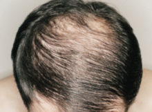 Hair Loss - Causes And Natural Treatment Methods