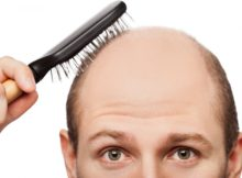 Know About Hair Replacement Systems And Their Nonpareil Benefits