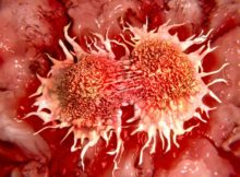 Screening For Specific Cancers