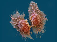 What Prevents Heavy Smokers From Screening For Lung Cancer?